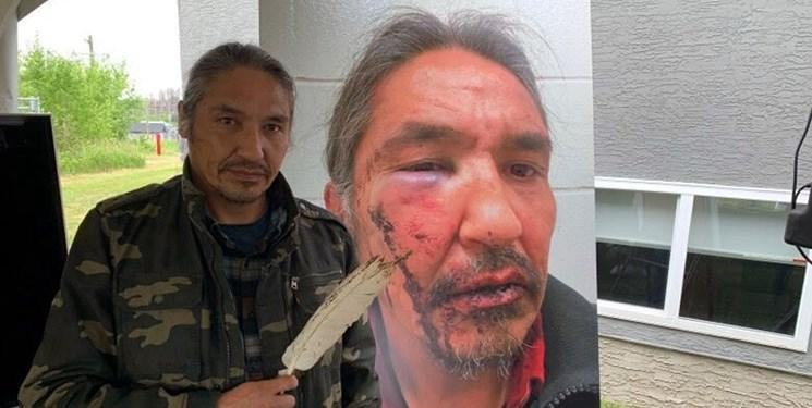 واکنش ها به حمله پلیس کانادا به یک رهبر بومی این کشور